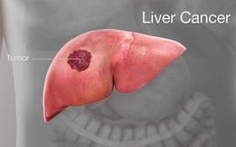 """4 cách để """"phong tỏa"""" tế bào ung thư gan, đừng để cứ hễ phát hiện là đã ở giai đoạn muộn"""