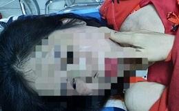 Điều tra người phụ nữ nghi bị chồng hờ bạo hành dã man