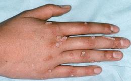 Nhận biết bệnh hạt cơm