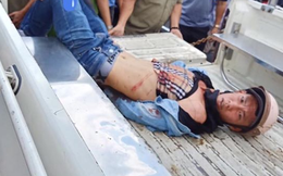 Vây bắt tên trộm xe SH ở Sài Gòn, 2 người bị đâm trọng thương