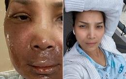 Gương mặt hiện tại của Hồng Ngọc sau sự cố nổ nồi xông hơi gây bỏng nặng
