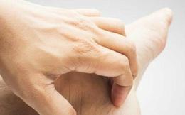 10 nguyên nhân gây ngứa chân và cách điều trị