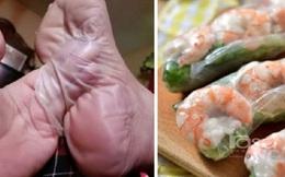 So sánh gỏi cuốn của Việt Nam với da chân người, một fanpage Malaysia khiến cộng đồng mạng phẫn nộ, hiện tại đã... biến mất