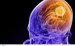 Ung thư não là căn bệnh như thế nào?