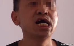 Chồng nghi ngờ vợ ngoại tình, đi theo dõi bị bạn trai cũ của vợ đánh gẫy răng