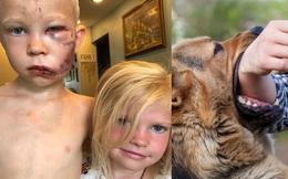Thấy con chó tiếp cận em, bé trai lao ra bảo vệ rồi bị cắn phải khâu 90 mũi và lời giải thích về hành động của mình gây xúc động mạnh