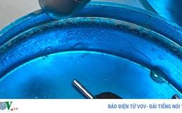 Cấp cứu kịp thời một trường hợp hy hữu bị mắc kẹt đai ốc vào dương vật
