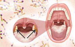 CDC TP Hồ Chí Minh hướng dẫn: 8 biện pháp phòng tránh bệnh bạch hầu