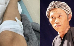 Hoài Linh gặp tai nạn chảy máu chân vì bị gà đá khiến khán giả 'dở khóc dở cười'