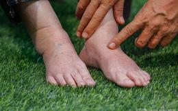 Nếu bị phù ở chân: Làm sao để biết đó là bệnh về mạch máu, bệnh thận hay bệnh khác?