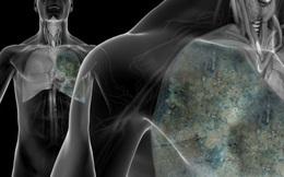 """WebMD """"chỉ mặt"""" thủ phạm gây ra 9/10 ca tử vong do ung thư phổi: Cần từ bỏ và tránh xa!"""