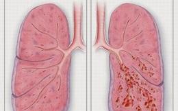 Cảnh báo xơ phổi – di chứng của COVID-19