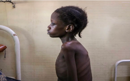 Con số khủng khiếp: 10.000 trẻ em tử vong mỗi tháng vì nạn đói liên quan đến đại dịch Covid-19