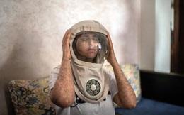 Cô gái dị ứng ánh Mặt Trời, 20 năm ra ngoài phải đội mũ phi hành gia