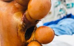 """Lại thêm """"nạn nhân"""" của vi khuẩn Whitmore: Hôn mê, suy đa tạng vì bị cọc tre đâm vào chân"""