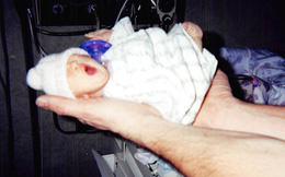 """""""Cô bé tí hon"""" sinh ra nằm lọt thỏm trong lòng bàn tay, bị chẩn đoán chỉ sống vài ngày nhưng 12 năm sau lại khiến thế giới kinh ngạc"""