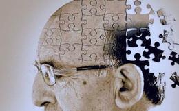 7 siêu thực phẩm giúp ngăn ngừa bệnh Alzheimer