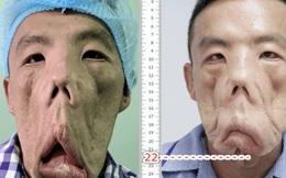 """Bác sĩ Sài Gòn tìm cách cứu người đàn ông sống kiếp """"mặt quỷ"""", ngủ ngồi và mắt luôn đỏ như máu trong suốt 15 năm"""