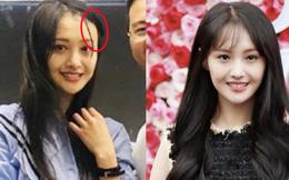 Trịnh Sảng gây xôn xao với vóc dáng gầy rộc, lộ dấu hiệu hói tóc trong ảnh chụp không photoshop