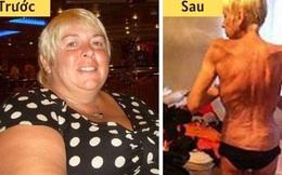 Người phụ nữ từng nặng 130 kg gây sốc với thân hình gầy trơ xương ám ảnh sau phẫu thuật thắt dạ dày để giảm cân