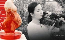 Bị ám ảnh với nỗi đau mà mẹ gánh chịu bởi vòng tránh thai, cô gái dành 10 năm ghi lại chứng tích mà hàng triệu phụ nữ Trung Quốc phải trải qua