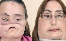 Nhìn lại những hình ảnh gây xúc động của bệnh nhân trải qua đại phẫu cấy ghép mặt sống sót lâu nhất thế giới vừa qua đời