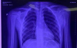 Lần đầu tiên ở Việt Nam: Phẫu thuật thay xương bả vai cho bệnh nhi nhỏ tuổi nhất