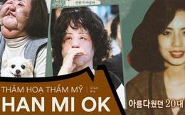 Xót xa 'thảm hoạ dao kéo' Han Mi Ok: Mỹ nhân biến dạng vì nghiện thẩm mỹ, mua dầu ăn về tự tiêm và cái chết bí ẩn tuổi 57