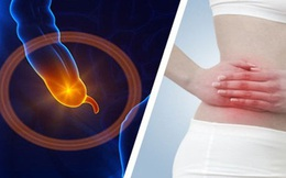 """Bệnh lý viêm ruột thừa, sợ nhất hai từ """"quá muộn"""": Bác sĩ BV Việt Đức lưu ý những phản xạ cần có khi đau bụng để bảo toàn tính mạng"""