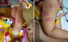 Đi học buổi thứ 2, bé 21 tháng tuổi ở Thái Bình bị nhiều vết cắn tấy đỏ khắp người