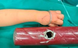 Bé gái vào bệnh viện với tay kẹt trong ống chân giường sắt