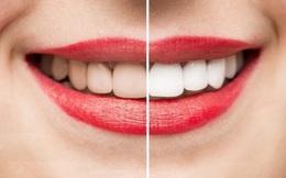 Tẩy trắng có làm ảnh hưởng men răng?
