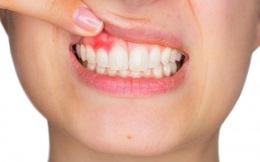 Viêm nướu răng nguy hiểm thế nào?