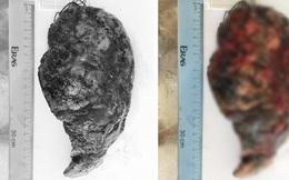 Hiếm gặp trong cả y văn quốc tế: Phát hiện 2 loại ung thư trên cùng một mô bệnh phẩm