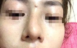 Vụ bé gái 13 tuổi tổn hại 42% sức khỏe khi đi nâng mũi: Khôi phục quyền khiếu nại của gia đình bị hại