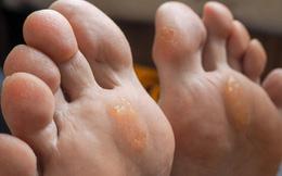 """Nếu bỗng dưng thấy bàn chân có 5 sự thay đổi này, coi chừng cơ thể đang mắc trọng bệnh và cần được """"giải cứu"""""""