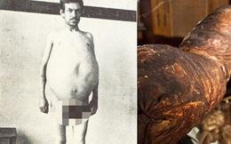 """Chuyện kỳ lạ về người đàn ông bị táo bón bẩm sinh, chết khi cố đi đại tiện và ruột già được trưng bày trong bảo tàng Mỹ gây """"sởn da gà"""""""