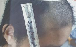 Bé gái ở Bắc Ninh bị cha đánh đập nhiều ngày, dùng tông đơ cạo tóc