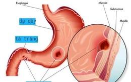 5 quy tắc cho người bị viêm dạ dày