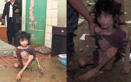 Ập vào nhà của người nhập cư bất hợp pháp, cảnh sát phát hiện đứa trẻ bị mẹ bỏ rơi 2 năm trời, ăn đất và chất thải để cầm cự