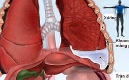 Tràn dịch màng phổi, do đâu?