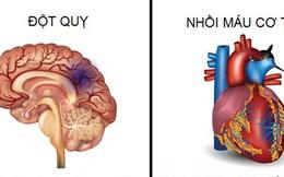 Sự khác biệt giữa đột quỵ và nhồi máu cơ tim
