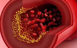 """Mỡ máu cao có thể dẫn đến tắc mạch máu, đột tử: 4 """"sát thủ"""" tàng hình bạn nên tránh xa"""