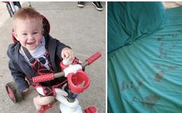 """Nghe tiếng hét của con trai 18 tháng giữa đêm, mẹ chạy đi kiểm tra thì phát hiện nhiều vết máu trên giường gây ra bởi """"hung thủ"""" không ai ngờ"""