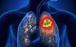 Kết hợp hóa trị và liệu pháp miễn dịch trong điều trị ung thư phổi