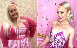 Nàng béo 154 kg phẫu thuật cắt bỏ 80% dạ dày, lột xác kinh ngạc để giống búp bê Barbie