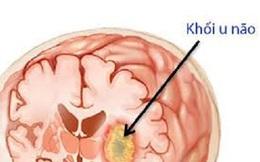 Độc tố trong thịt chưa nấu chín có liên quan đến u não hiếm gặp