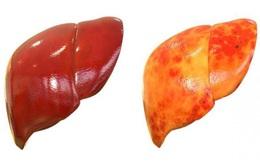 """Gan nhiễm mỡ không chỉ do ăn nhiều chất béo: Đây là 4 """"kẻ thù giấu mặt"""" cần cảnh giác"""