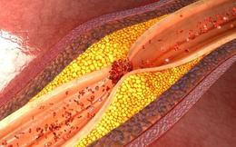 """5 """"bảo bối"""" tự nhiên giúp lọc sạch máu, làm thông mạch máu, ngăn ngừa bệnh mỡ máu cao"""