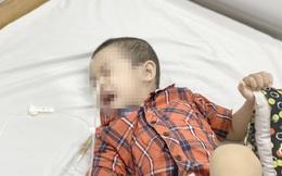 Bé 4 tuổi bỏng thực quản do hóc dị vật: Vì sao nuốt phải pin cực kỳ nguy hiểm?